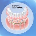 Een kunstgebit op implantaten